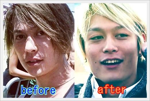 ONE OK ROCK、toru、画像、メガネ、変顔、イケメン、昔、太った18